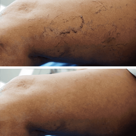 Spider and Varicose Vein Treatment Clinic NYC