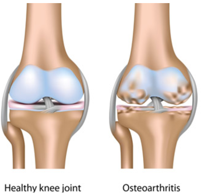 Who's the best arthritis pain doctor New York? We have a team of Ivy League pain doctors offering the latest conservative arthritis treatments that maximize health.