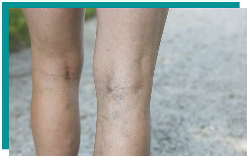 Manhattan Varicose Vein Treatment