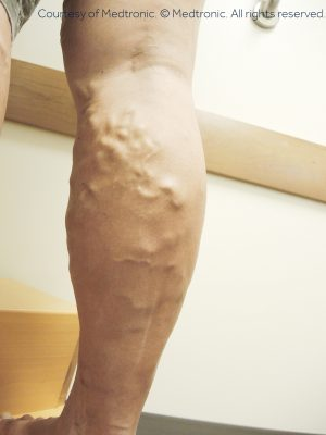 In this article, we'll let you know if Apple Cider Vinegar Natural Treatment for Varicose Veins is actually effective.