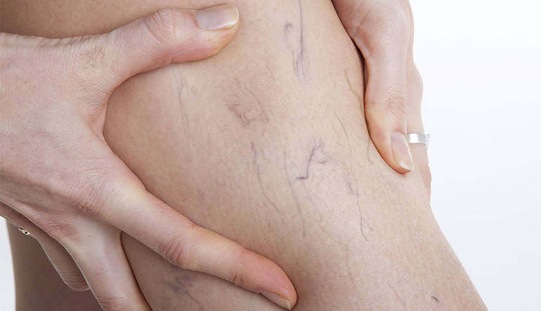 Spider veins can be indicative of underlying vein disease, making it potentially dangerous. In this article, we discuss the best treatment for spider veins.