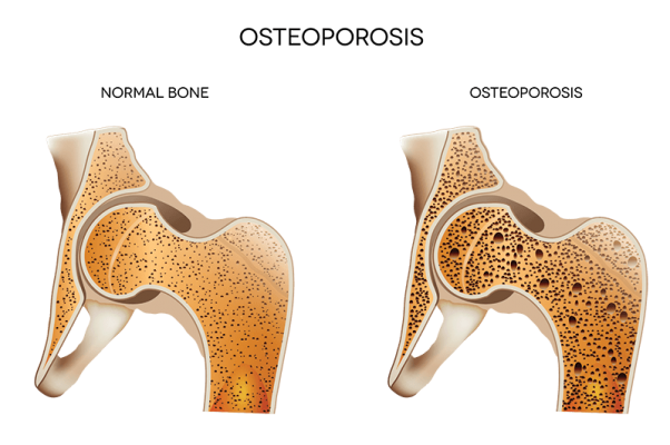Osteopenia vs. Osteoporosis — what are they and why do they matter? Learn more about these diseases and the doctors and treatments that are right for you.