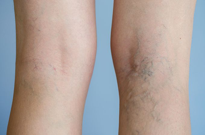 Do you have large leg veins that make you self-conscious? In this article, we discuss what causes leg veins and what are the top leg vein treatment options. Schedule a free consultation today with one of our vein specialists in New Jersey, New York. Call today at (646) 494-4043
