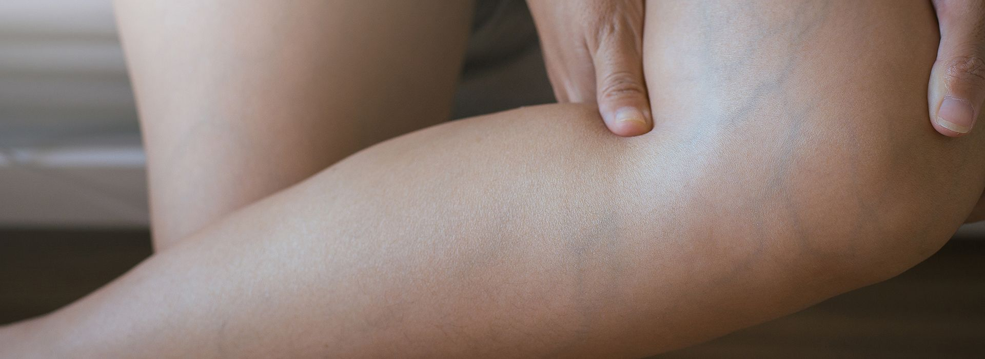 "Do you have bulging varicose veins? If so, you might be asking yourself, ""how can I find the best comprehensive varicose veins laser clinic?"" In this article, we give you that answer. Call to schedule a consultation on (646) 494-4043."