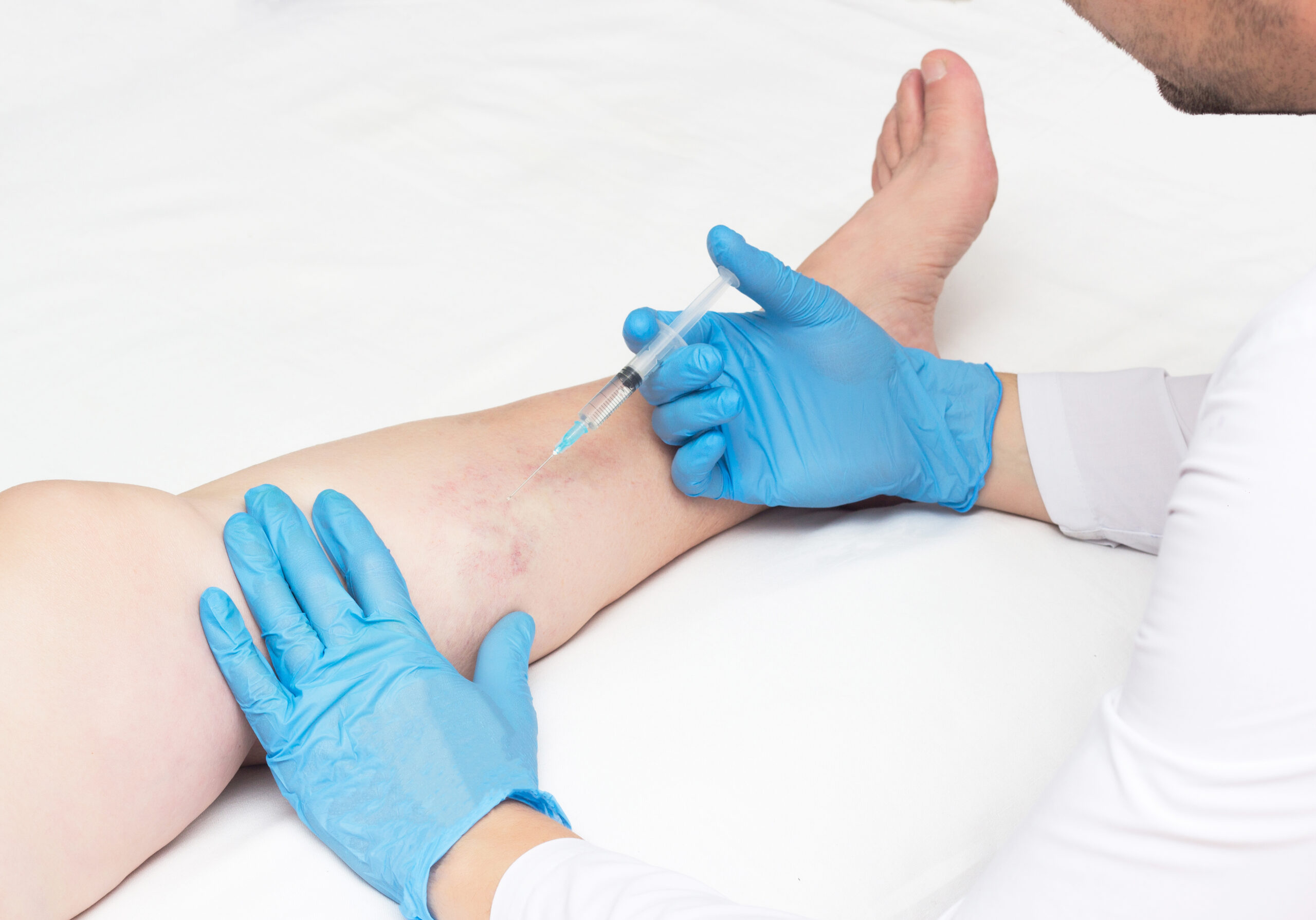 The Spider Vein and Varicose Vein Center in Houston, TX, has a comprehensive vein care process. This article describes the minimally invasive vein treatment process in detail.